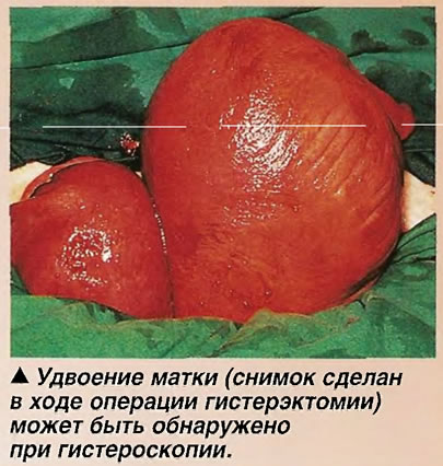 Удвоение матки (снимок сделан в ходе операции гистерэктомии) может быть обнаружено при гистероскопии