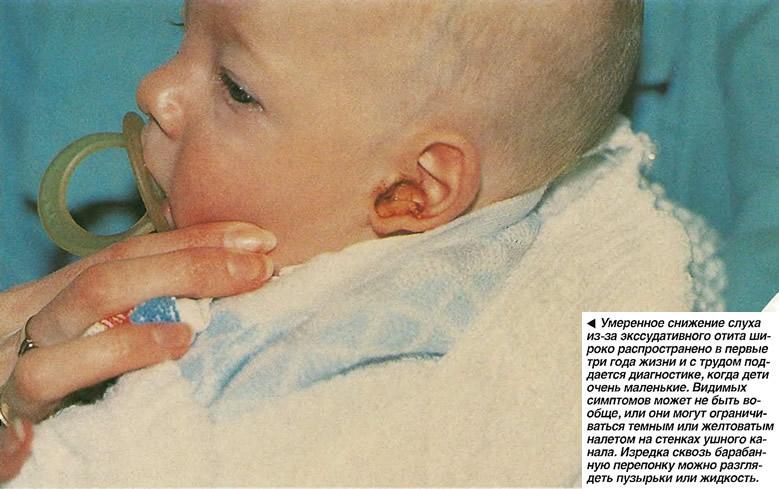 Умеренное снижение слуха распространено в первые три года жизни и с трудом поддается диагностике