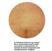 Упорный кожный зуд может быть симптомом какого-либо системного заболевания