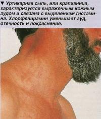 Уртикарная сыпь или крапивница