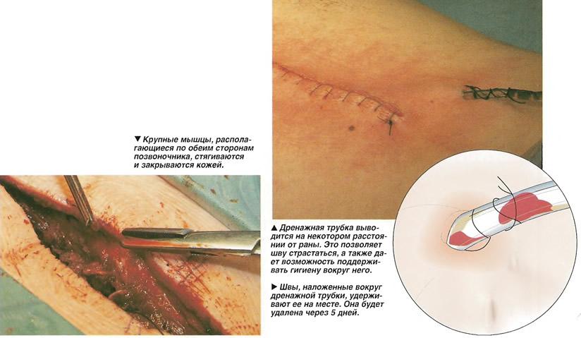 Ушивание операционной раны
