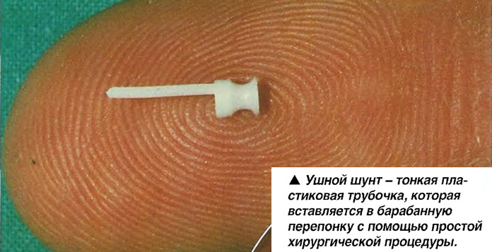 Ушной шунт