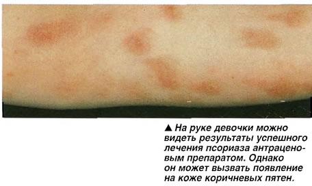 Успешное лечение псориаза
