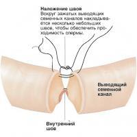 Устранение вазэктомии