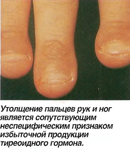 Утолщение пальцев рук и ног