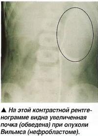 Увеличенная почка (обведена) при опухоли