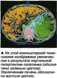 Увеличенная в результате портальной гипертензии селезенка