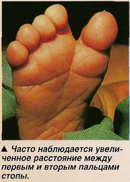 Увеличенное расстояние между первым и вторым пальцами стопы