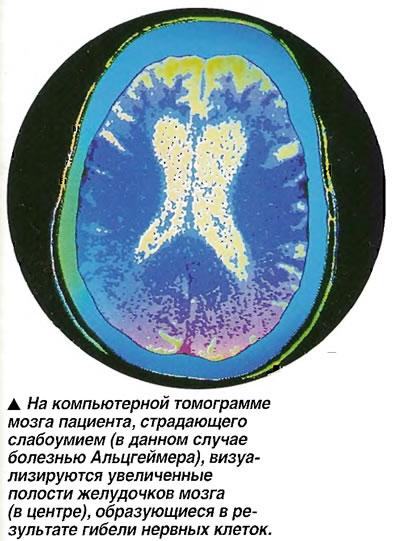 Увеличенные полости желудочков мозга, образующиеся в результате гибели нервных клеток