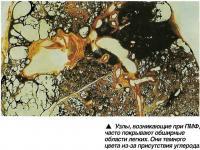 Узлы, возникающие при ПМФ, часто покрывают обширные области легких