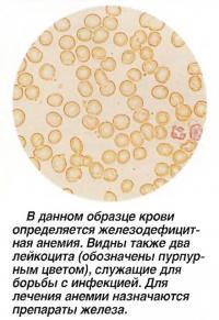 В данном образце крови определяется железодефицитная анемия