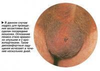 В данном случае надрез для проведения вазэктомии был сделан посередине мошонки