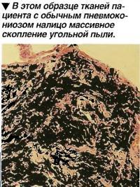В этом образце тканей пациента с обычным пневмокониозом налицо массивное скопление угольной пыли