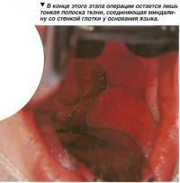 В конце этого этапа операции остается лишь тонкая полоска ткани