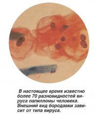 В настоящее время известно более 70 разновидностей вируса папилломы человека