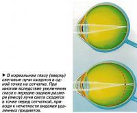 В нормальном глазу световые лучи сходятся в одной точке на сетчатке