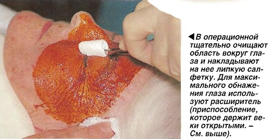 В операционной тщательно очищают область вокруг глаза