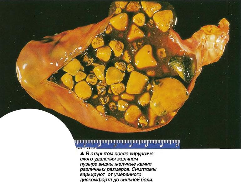 Симптомы образования камней в желчном пузыре