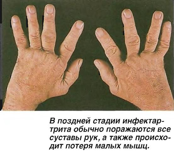 В поздней стадии инфектартрита обычно поражаются все суставы рук