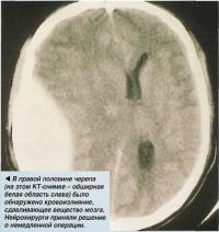 В правой половине черепа было обнаружено кровоизлияние