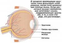 В процессе аккомодации хрусталик глаза фокусирует изображение