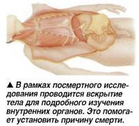 В рамках посмертного исследования проводится вскрытие тела для изучения внутренних органов