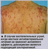 В случае воспалительных угрей