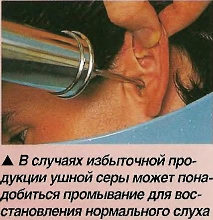 В случаях избыточной продукции ушной серы может понадобиться промывание
