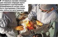 В тяжелых случаях стенокардии показана операция аортокоронарного шунтирования
