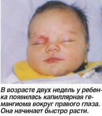 В возрасте двух недель появилась капиллярная гемангиома вокруг правого глаза