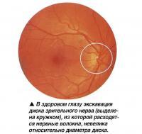 В здоровом глазу экскавация диска зрительного нерва невелика относительно диаметра диска