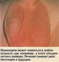 Варикоцеле у четырехлетнего ребенка