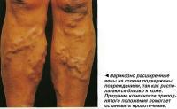 Варикозно расширенные вены на голени подвержены повреждениям, так как располагаются близко к коже