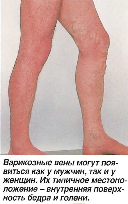 Варикозные вены могут появиться как у мужчин, так и у женщин