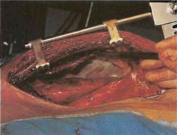 Вдоль левого края грудины устанавливают угловой ретрактор