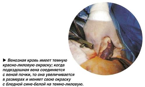 Венозная кровь