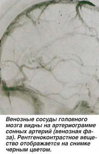 Венозные сосуды головного мозга видны на артериограмме сонных артерий