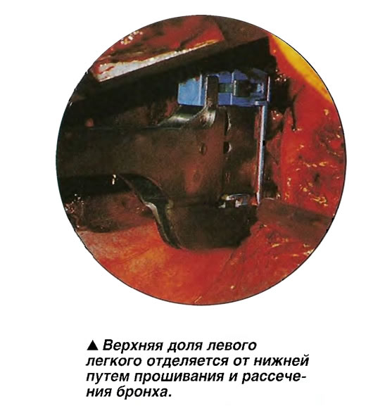Верхняя доля левого легкого отделяется от нижней путем прошивания и рассечения бронха