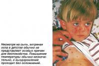 Ветряная оспа в детстве обычно не представляет особых причин для беспокойства