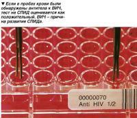 ВИЧ - причина развития СПИДа