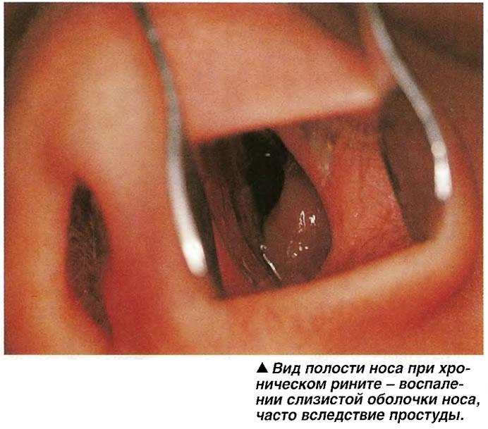 Вид полости носа при хроническом рините