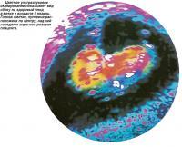 Вид сбоку на здоровый плод в матке в возрасте 9 недель