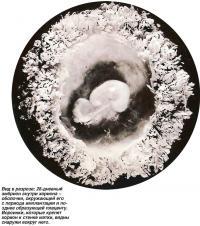 Вид в разрезе: 28-дневный эмбрион внутри хориона