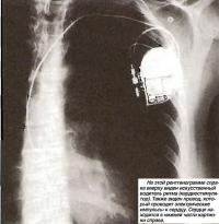 Виден искусственный водитель ритма (кардиостимулятор)