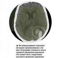 Видно кровоизлияние в левом полушарии головного мозга