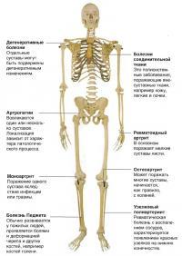 Виды ревматических болезней