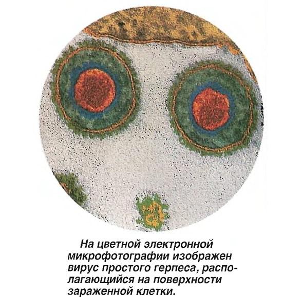 Вирус простого герпеса, располагающийся на поверхности зараженной клетки