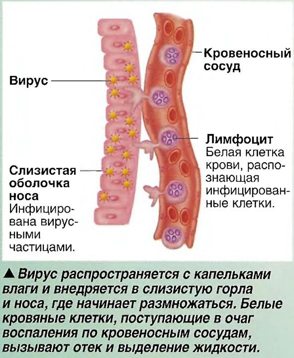Вирус распространяется с капельками влаги и внедряется в слизистую горла и носа