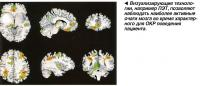 Визуализирующие технологии, например ПЭТ, позволяют наблюдать наиболее активные очаги мозга