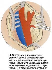 Внутренняя яремная вена располагается на шее параллельно сонной артерии
